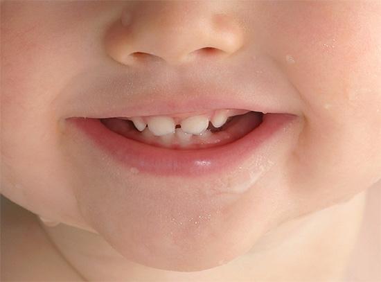 Профилактика кариеса должна начинаться сразу же после прорезывания первых зубов у ребенка.