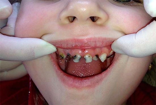 Все зубы у ребенка поражены кариесом