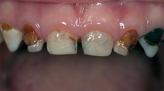 Пример генерализованного кариеса молочных зубов у ребенка.