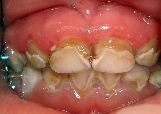 Запущенный кариес молочных зубов