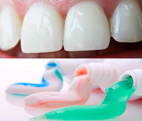 Правильный выбор зубной пасты существенно снижает риск развития кариеса зубов, поэтому давайте рассмотрим этот вопрос подробнее...