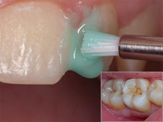 Как избавиться от зуба в домашних условиях 102
