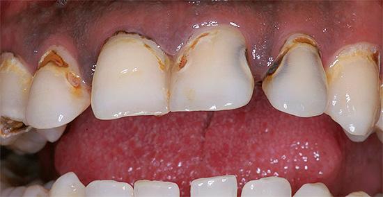 Как ни странно, но заговоры иногда как будто бы уменьшают зубную боль, однако сам кариес никуда при этом не уходит, и в дальнейшем проблемы будут лишь нарастать.
