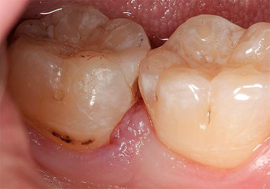 При явно плохом состоянии зубов не стоит оттягивать визит к стоматологу, так как в домашних условиях избавиться от проблемы не получится.