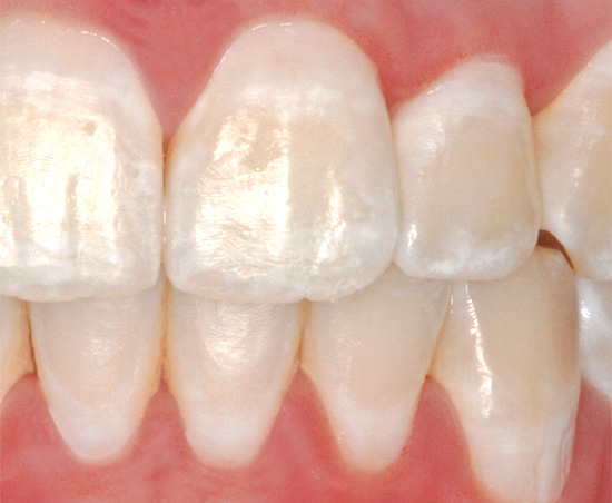На фотографии показан пример кариеса в стадии так называемого белого пятна (иногда его также называют меловым)