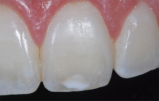 А вот на стадии белого пятна восстановить свойства зубной эмали вполне можно не только у стоматолога, но и в домашних условиях.
