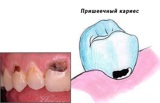 Рассмотрим некоторые интересные вопросы, связанные с лечением пришеечного кариеса, включая терапию у стоматолога и меры, которые можно предпринять в домашних условиях.