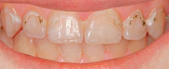 К сожалению, нет никаких гарантий того, что занимаясь лечением самостоятельно, вы сможете привести свои зубы в нормальный вид.