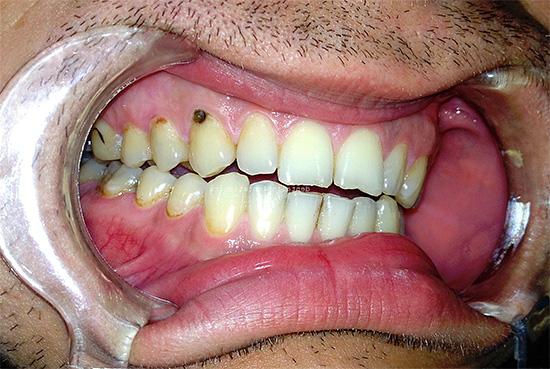 На фото показан пример пришеечного кариеса на верхнем зубе