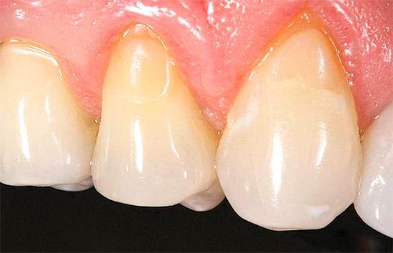Зубы после лечения пришеечного кариеса - едва заметны пломбы