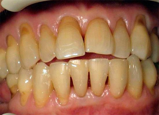 Под зубным налетом, который скапливается в плохо очищаемой придесневой зоне, может активно протекать кариозный процесс.