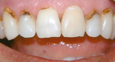 Любые дефекты на передних зубах, не говоря уже про пришеечный кариес, сильно портят внешний вид зоны улыбки.
