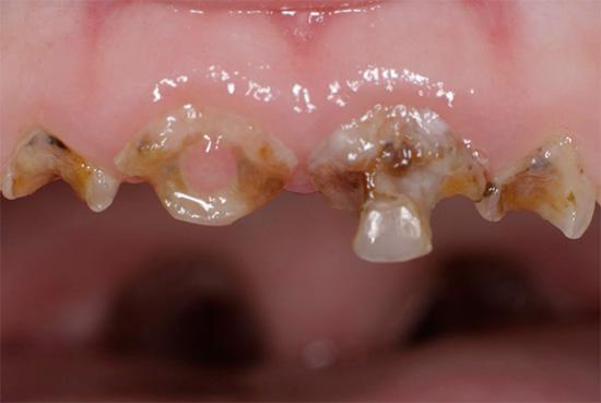 Генерализованный кариес молочных зубов у ребенка.