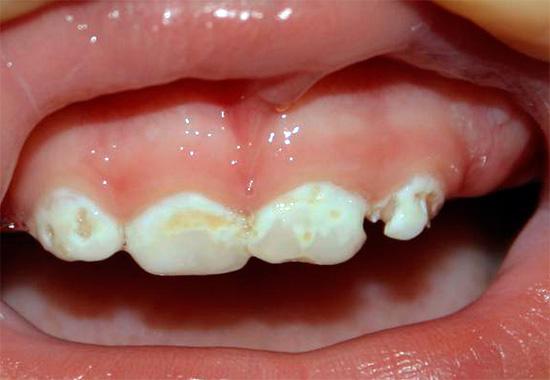 Еще один пример бутылочного кариеса у ребенка: если вовремя не начать лечение зубов, то за короткий промежуток времени они могут быть разрушены практически полностью.