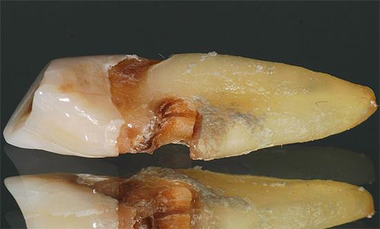 Кариес корня, зачастую развиваясь незаметно под десной, в итоге может привести к выпадению зуба или необходимости его удаления.