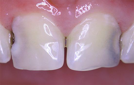 Однако по мере разрастания кариозной полости между зубами, проблема в итоге становится видна невооруженным глазом.