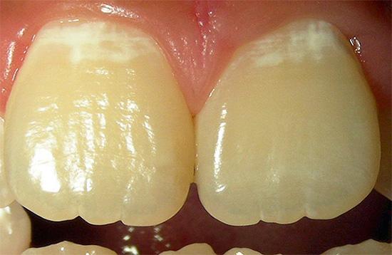 Начальный этап кариозного поражения зубов называют также стадией белого или мелового пятна.