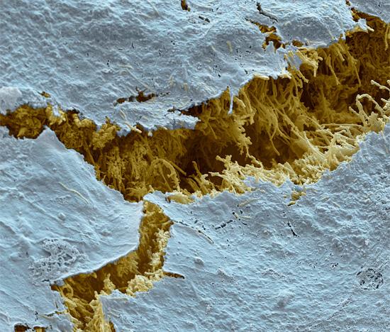 На этом интересном снимке показано, как выглядят разрушенные кариесом ткани зуба под микроскопом.
