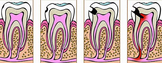 Этапы развития кариеса: от начальной формы до пульпита.