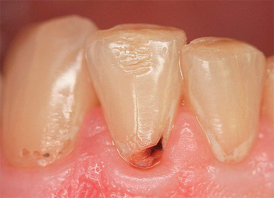 Еще один пример разрушения в области шейки зуба.