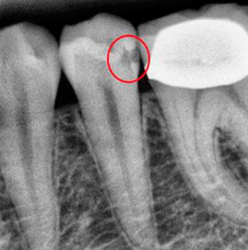 Рентгеновские снимки помогают врачу увидеть те кариозные полости, которые при обычном визуальном осмотре не обнаруживаются.