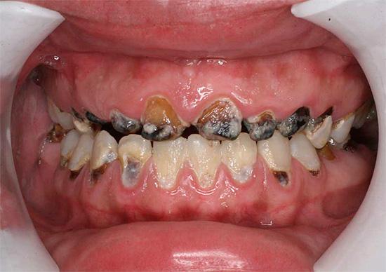 При генерализованном кариесе происходит довольно стремительное и сильное разрушение сразу многих зубов в ротовой полости.