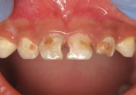 Если долго откладывать визит к стоматологу, то, например, ребенок может раньше времени остаться вовсе без зубов.