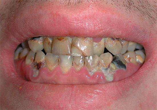 То же касается и взрослых - на фотографии показан пример множественного кариеса, когда практически все зубы имеют следы разрушения.