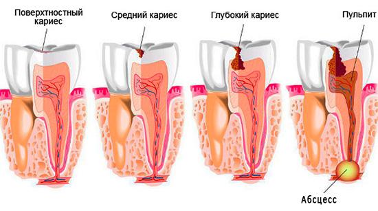Данная картинка демонстрирует последовательность этапов, через которые проходит зуб при поражении кариесом, если его не лечить.