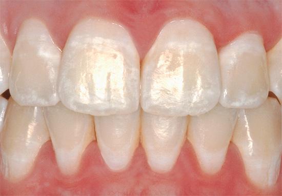 Белые пятна на зубах - это участки деминерализованной эмали
