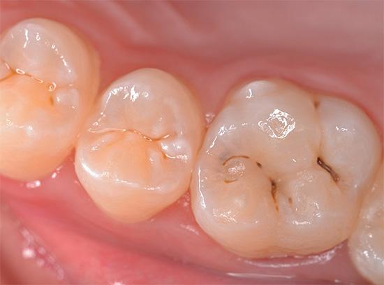 Очень часто кариесом поражаются фиссуры зуба - естественные углубления на его жевательной поверхности.