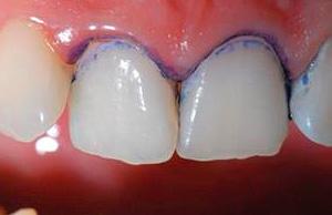 Важно учитывать, что индикатор может окрашивать не только пораженные кариесом ткани, но также налет и зубной камень.
