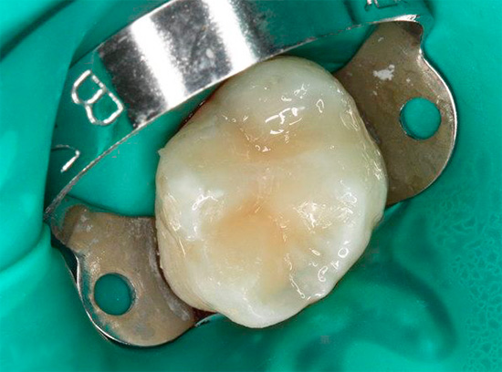 А так выглядит уже запломбированный зуб после лечения.