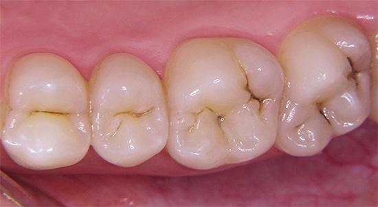 Профилактика кариеса при беременности должна, вообще говоря, наичнаться еще на стадии планирования ребенка: необходимо заранее вылечить все зубы и решить проблемы с деснами.