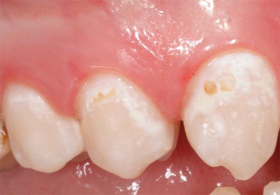На фотографии хорошо заметна деминерализованная эмаль белого цвета, которая в дальнейшем постепенно начнет пигментироваться, если вовремя не начать лечение.