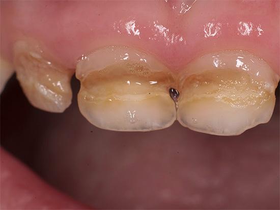 Особенно распространен сегодня кариес молочных зубов у детей (на фото показан пример)