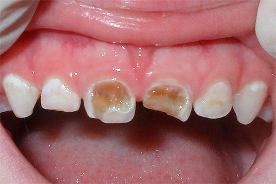 Несмотря на то, что молочные зубы скоро выпадут, лечить кариес на них нужно обязательно.