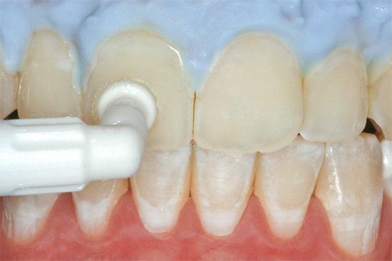 Кариес в стадии белого пятна может быть вылечен консервативными методами - путем восстановления зубной эмали специальными минерализующими препаратами.