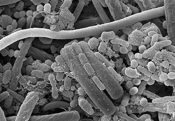 Согласно паразитарной теории развития кариеса зубов Миллера эта болезнь развивается вследствие жизнедеятельности микроорганизмов в зубном налете и полости рта.