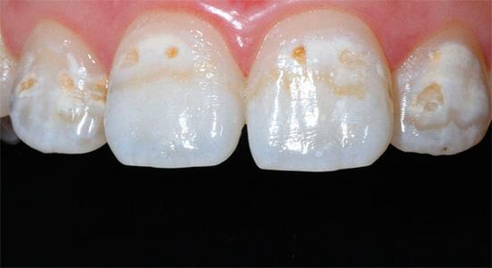 Если не предотвратить дальнейшую потерю зубной эмалью минеральных компонентов, то она продолжит разрушаться с углублением кариозных полостей...