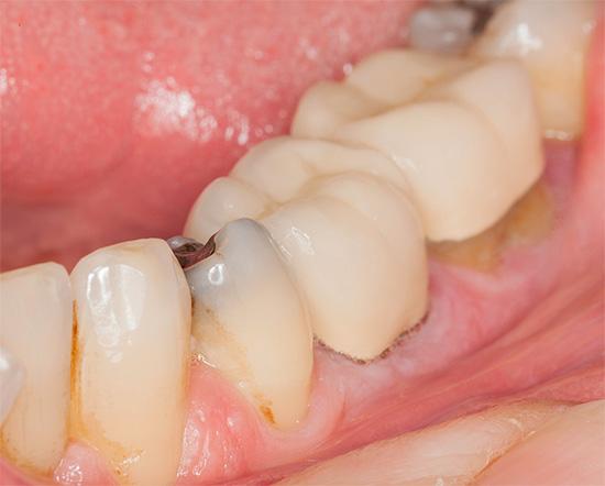 Хотя и распространено мнение, что кариес может переходить с одного зуба на другой, но это неверное представление