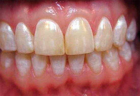 При эндемическом флюорозе на зубах также могут быть пятна различной окраски, от белого цвета до коричневого.
