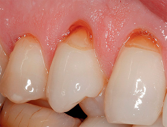 На фотографии показан пример клиновидных дефектов на верхних зубах.