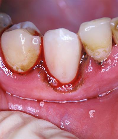 Установка пломбы в пришеечную область может существенно осложняться попаданием в рабочее поле десневой жидкости и крови.