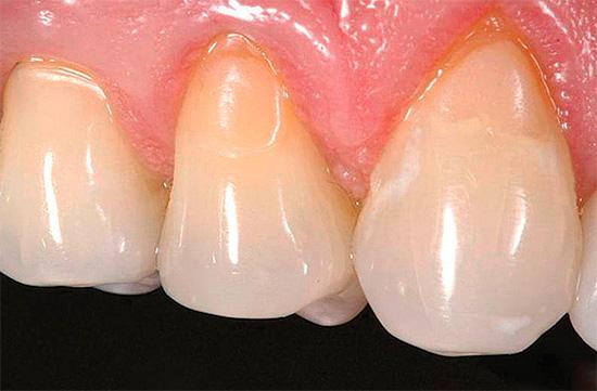 А так выглядят зубы уже после лечения - заметны установленные пломбы в области шейки.