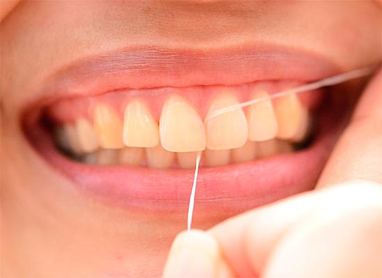 Использование зубной нити позволяет эффективно вычищать межзубное пространство, где зачастую скрыто может развиваться кариес.