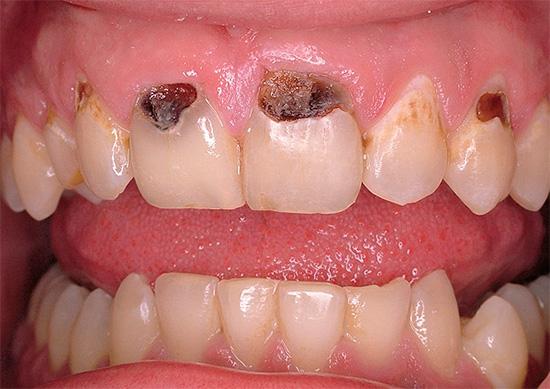 Пришеечный кариес на передних зубах очень сильно может испортить улыбку человека.