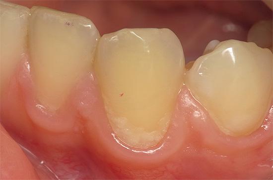 На начальной стадии патологический процесс иногда проявляет себя едва заметным беловатым пятном в области шейки зуба.