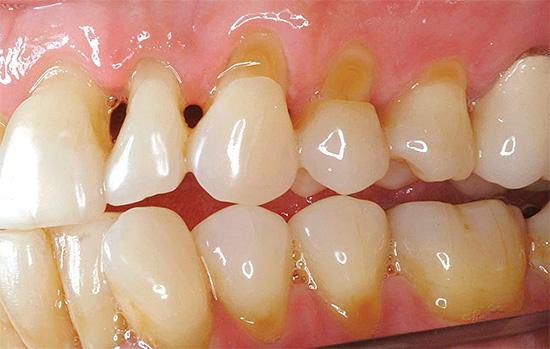 Вследствие истончения эмали в пришеечной зоне зуб становится весьма чувствительным к различного рода раздражителям, в том числе и к холодному воздуху
