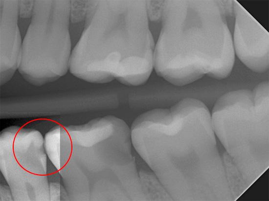 На этом рентгеновском снимке хорошо видно поражение зуба глубоким кариесом, который был бы незаметен при простом визуальном осмотре.